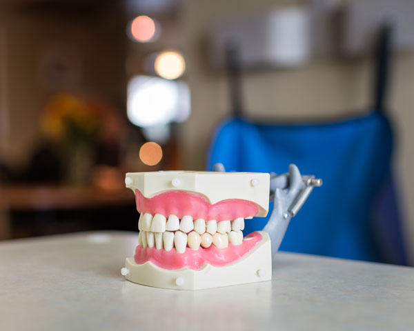 model mouth with gums and teeth on a table