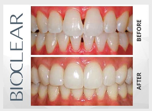 Before and After image of Bioclear Treatment