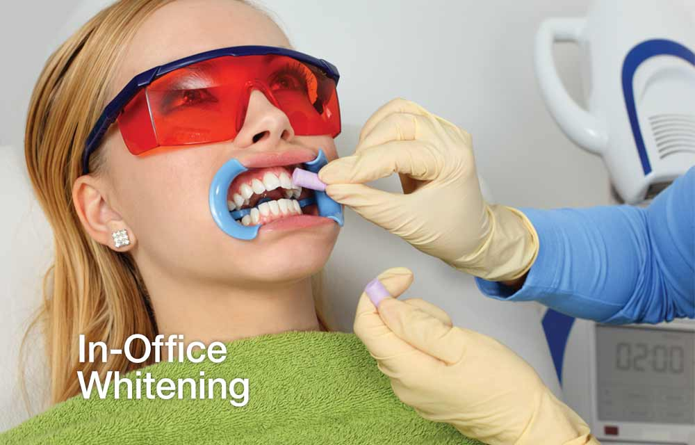 dentist wearing gloves whitening a patient's teeth in-office