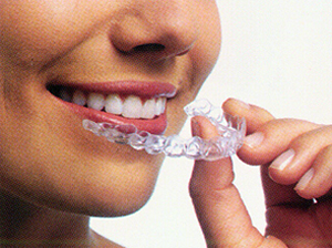 smiling woman placing Invisalign in her mouth