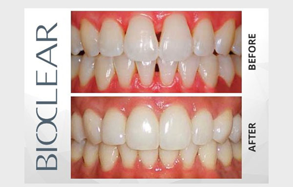 Bioclear before and after photo