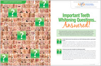 important teeth whitening questions magazine article