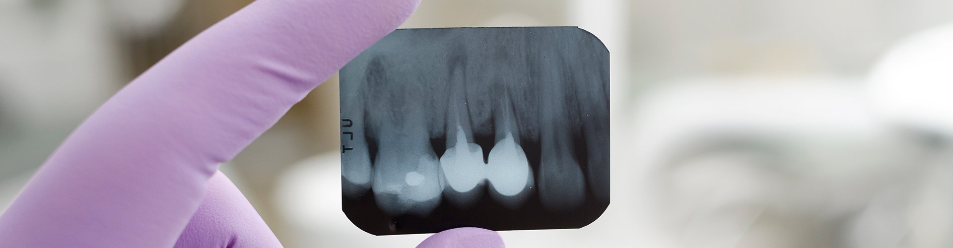 Dentist Reviewing Dental X-Ray in Seattle Office
